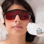Epilation laser visage